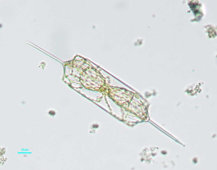 Phytoplankton seen under a microscope. An individual is rectangular in shape with long needle-like protrustions extending from each end.